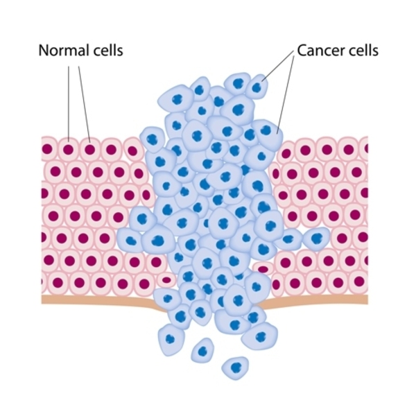 cancer-cells-two
